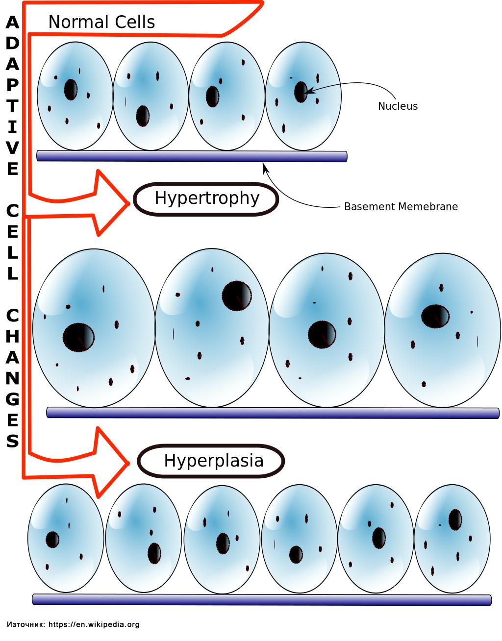 Мускулна хипертрофия и мускулна хиперплазия
