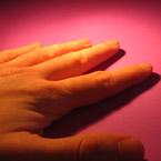 Синдром на изтръпващите длани